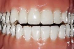 Dispositif d'alignement invisible orthodontique pour le traitement de dents photographie stock
