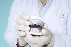 Dispositivo ortodôntico do retentor dental Fotografia de Stock