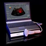 Dispositivos do ultra-som em um fundo preto fotos de stock royalty free