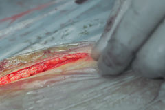 Dissection of the skin during surgery Royalty Free Stock Image