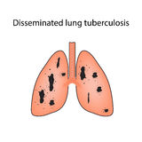 Disseminated tuberculosis. Vector illustration on isolated background Stock Photo