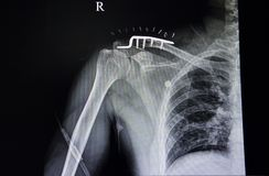 Distal clavicle fracture and pulmonary tuberculosis. A chest x-ray film of a traumatic injuried patient with fractured distal clavicle with metal plate and vector illustration