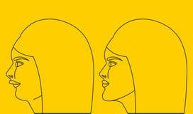 Distal kąsek, kobieta z malocclusion royalty ilustracja