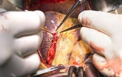 Distal koronar anastomosis med det mammary kneget royaltyfri bild