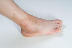 Distorsione della caviglia Immagini Stock