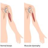 Distrofia muscular Imagens de Stock