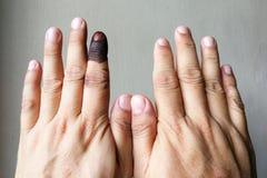 Dito indice con la macchia dell'inchiostro indelebile dopo il voto nell'elezione immagini stock