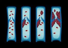 Diversas etapas del coágulo de sangre en ser humano ilustración del vector