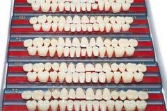 Diverse ceramische tanden Stock Afbeeldingen