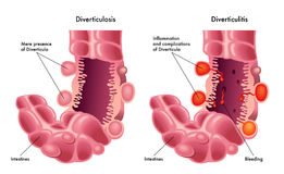 Diverticulose et diverticulite Photo stock