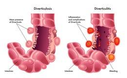 Diverticulosis y diverticulitis Foto de archivo