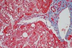 Djurt silkespapper för lever under mikroskopsikt arkivbild