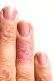 Dåligt finger för eksem för Dematitis allergiskt hud överilat Arkivbild