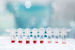 DNA samples for PCR amplification Royalty Free Stock Images