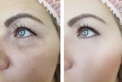 Do tratamento adulto da diferença da remoção dos enrugamentos da beleza da mulher cosmetologia antienvelhecimento antes e depois  imagem de stock royalty free