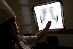 Docteur avec la radiographie de la poitrine Images libres de droits