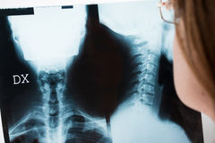 Docteur et rayon X Images libres de droits
