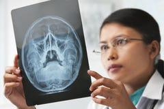 Docteur féminin contrôlant l'image de rayon X photos stock