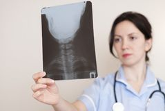 Docteur féminin tenant le rayon X image stock