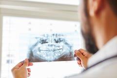 Docteur tenant l'image de rayon X de la mâchoire photo libre de droits