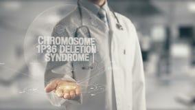 Docteur tenant le syndrome disponible de suppression du chromosome 1p36
