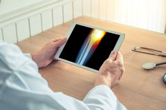 Docteur tenant un comprim? num?rique avec le rayon X de la jambe Douleur sur le genou interne photographie stock libre de droits