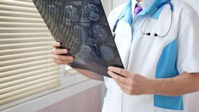 Docteur tenant une image d'un déroulement des opérations d'IRM cérébral dans un hôpital image stock