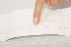 Doctor analyzing electrocardiogram Stock Photos