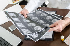 Doctor analyzing a MRI scan Stock Image