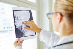 Doctor analyzing x-ray image. For oral surgery diagnose royalty free stock photos