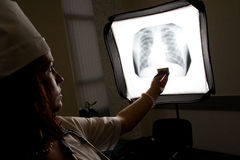 Doctor with chest X-ray. Isolated royalty free stock images
