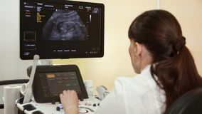 Doctor in the clinic in front of the monitor ultrasound examination pregnancy. Close up stock footage