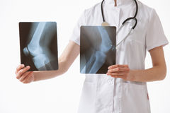 Doctor comparing X-rays with each other Stock Image
