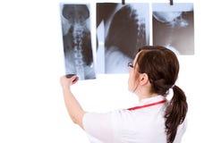 Doctor de sexo femenino aislado en blanco con la radiografía 3 Fotografía de archivo libre de regalías