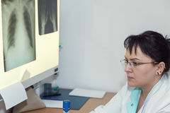 Doctor de sexo femenino de la radiografía foto de archivo
