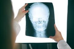 Doctor de sexo femenino que mira imagen de la radiografía de la cabeza humana Imagen de archivo libre de regalías