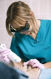 Doctor doing a laser treatment on a womans foot Royalty Free Stock Images