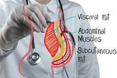 Doctor draws abdominal fat Royalty Free Stock Photo