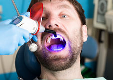 Doctor examines the oral cavity on tooth decay. Caries protection. Tooth decay treatment. Dentist working with dental. The reception was at the female dentist Royalty Free Stock Images