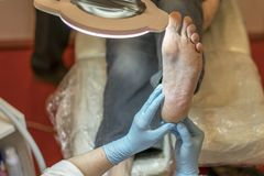 The doctor examines the patient's foot. leg pain. Treatment of leg pain. stock photo