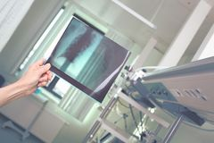 Doctor examines R-control film of patient`s lung stock photo