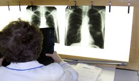 A doctor examines an xray. Film lung cancer Royalty Free Stock Image