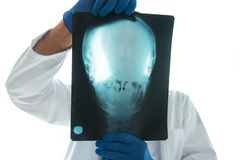 Doctor examining x-ray of the skull. Doctor examining x-ray of the patient`s skull in a medical clinic. Healthcare professional analyzing imaging test of human royalty free stock image