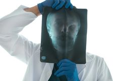 Doctor examining x-ray of the skull. Doctor examining x-ray of the patient`s skull in a medical clinic. Healthcare professional analyzing imaging test of human royalty free stock images