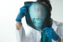 Doctor examining x-ray of the skull. Doctor examining x-ray of the patient`s skull in a medical clinic. Healthcare professional analyzing imaging test of human stock photography