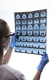 Doctor examining an roentgen of a patient. Brain Royalty Free Stock Photos