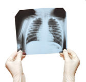 Doctor examining the X-ray Stock Images