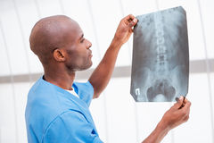 Doctor examining X-ray image. Stock Photography