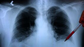 octor examining an x-ray of a patient`s lungs