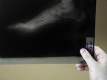 Doctor examining x-ray scans Stock Photo